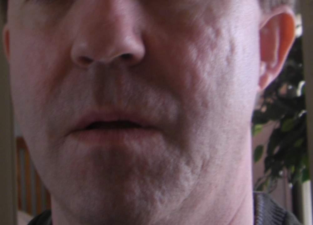 Pre-Treatment Baseline Photo - Full Face