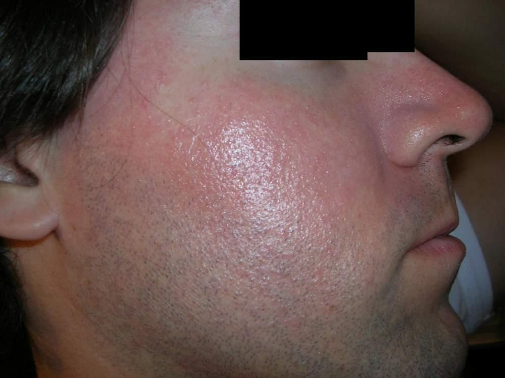 12hs_aftershower+sunscreen_on_10hs_cheek-right2.jpg