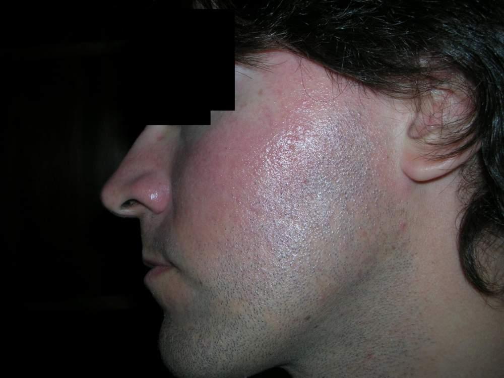 12hs_aftershower+sunscreen_on_10hs_left_cheek.jpg