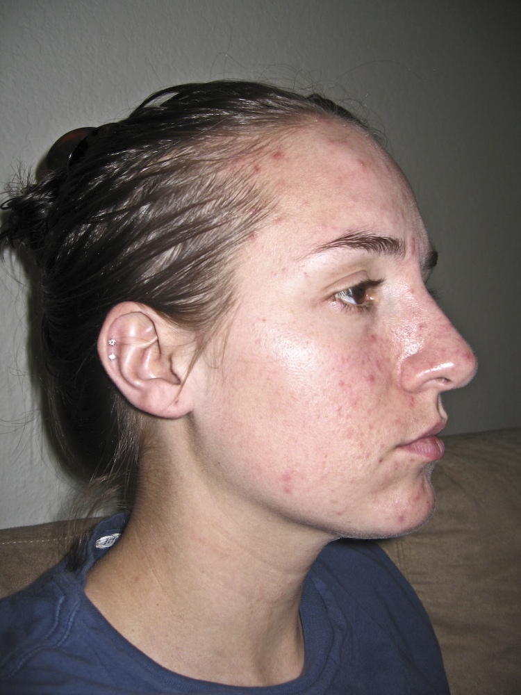 June 29, 2009...two days before starting my new regimen