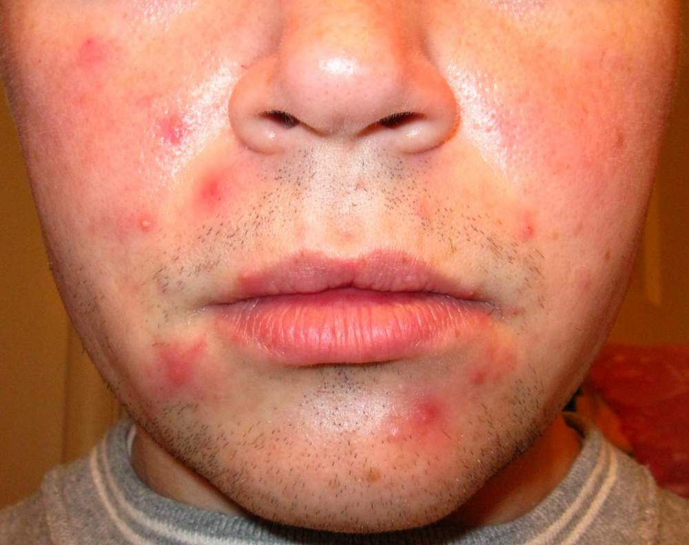 Accutane - Before, During, After