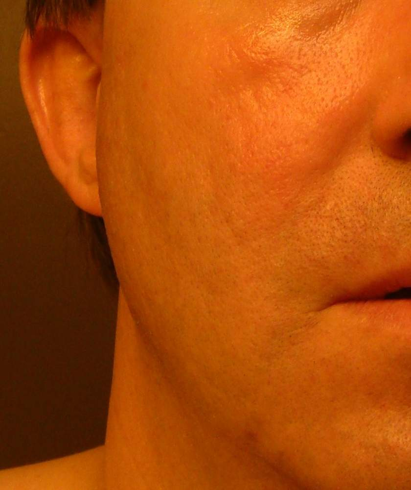 Right Cheek - 63 Days after Round Two of Subcision and TCA C