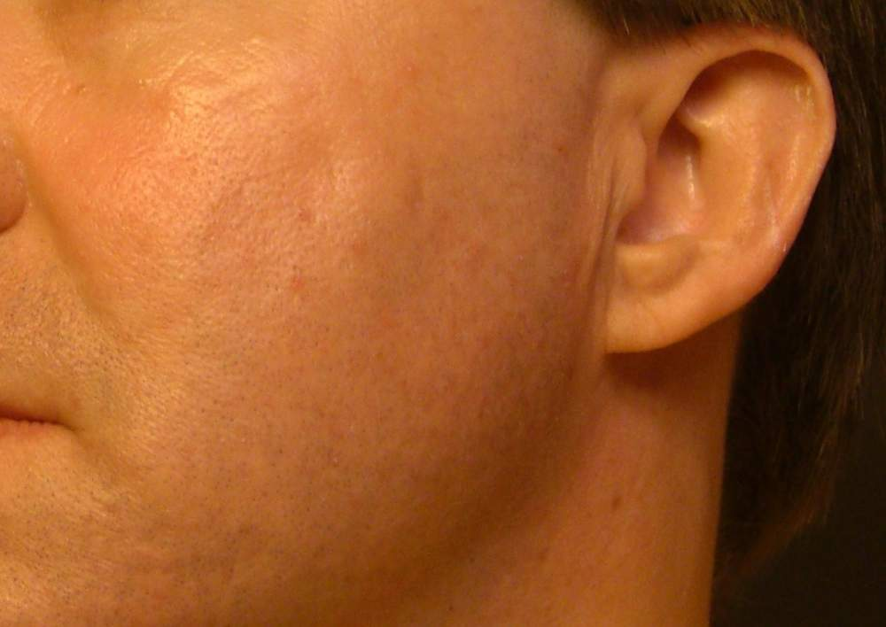 Left Cheek - 63 days after Round Two of Subcision