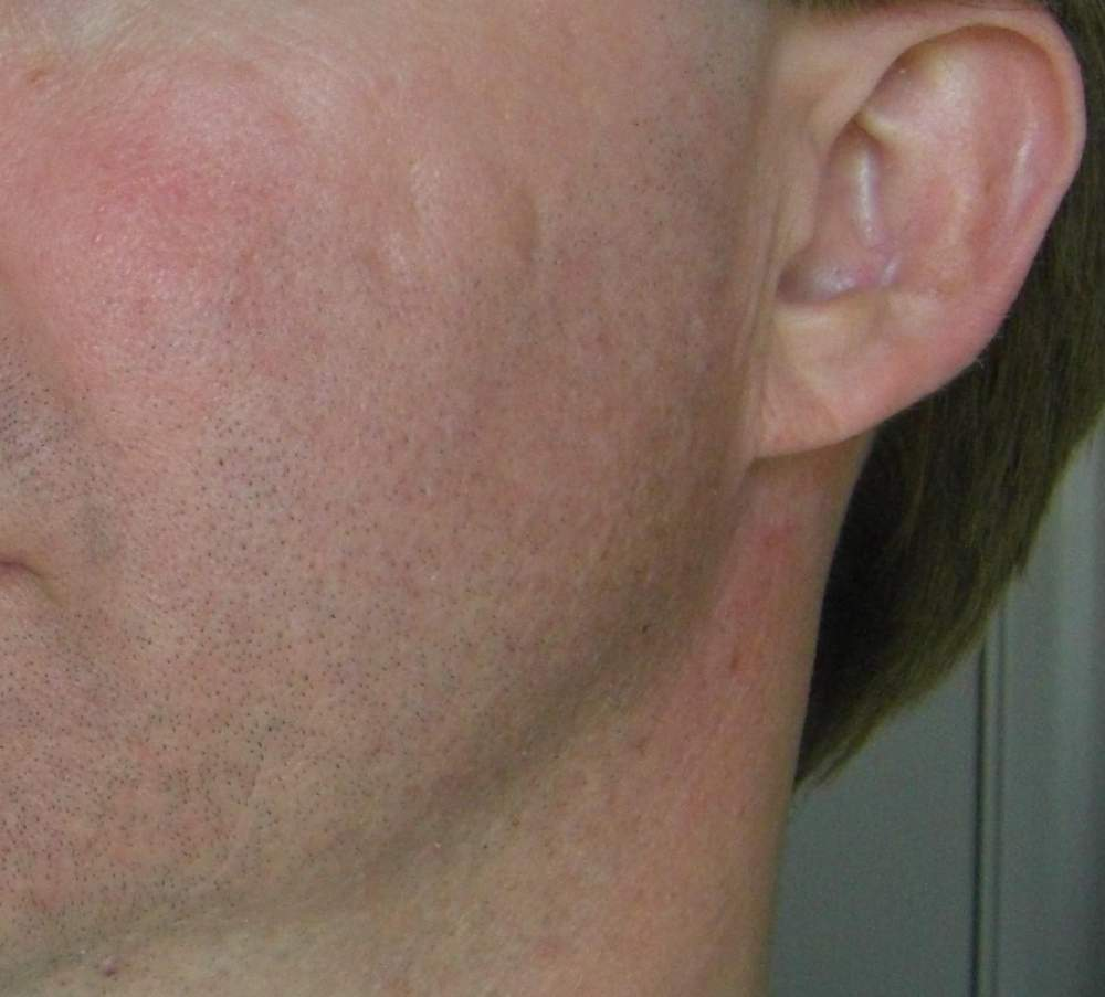 63 Days Post-Subcision Photo - Left Cheek