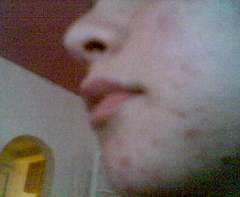 Day 4, left side of chin