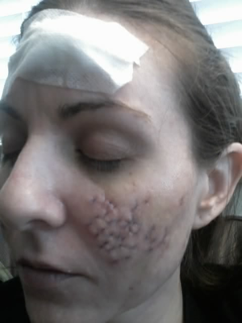 4/28/09 - Took out forehead - Cystic Acne Scar revision - Pictures ...