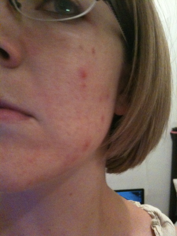 Breakout, out of nowhere, after months of perfect skin