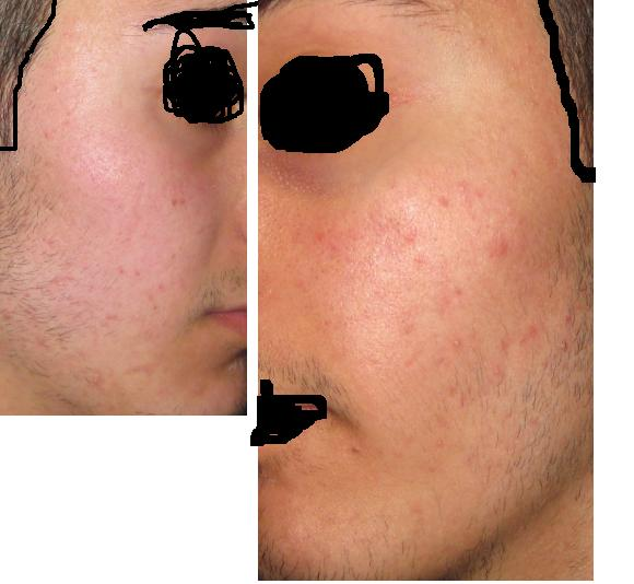 Should I Take Accutane???