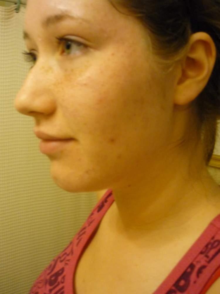 My Skin Pre-Acne.org Regimen