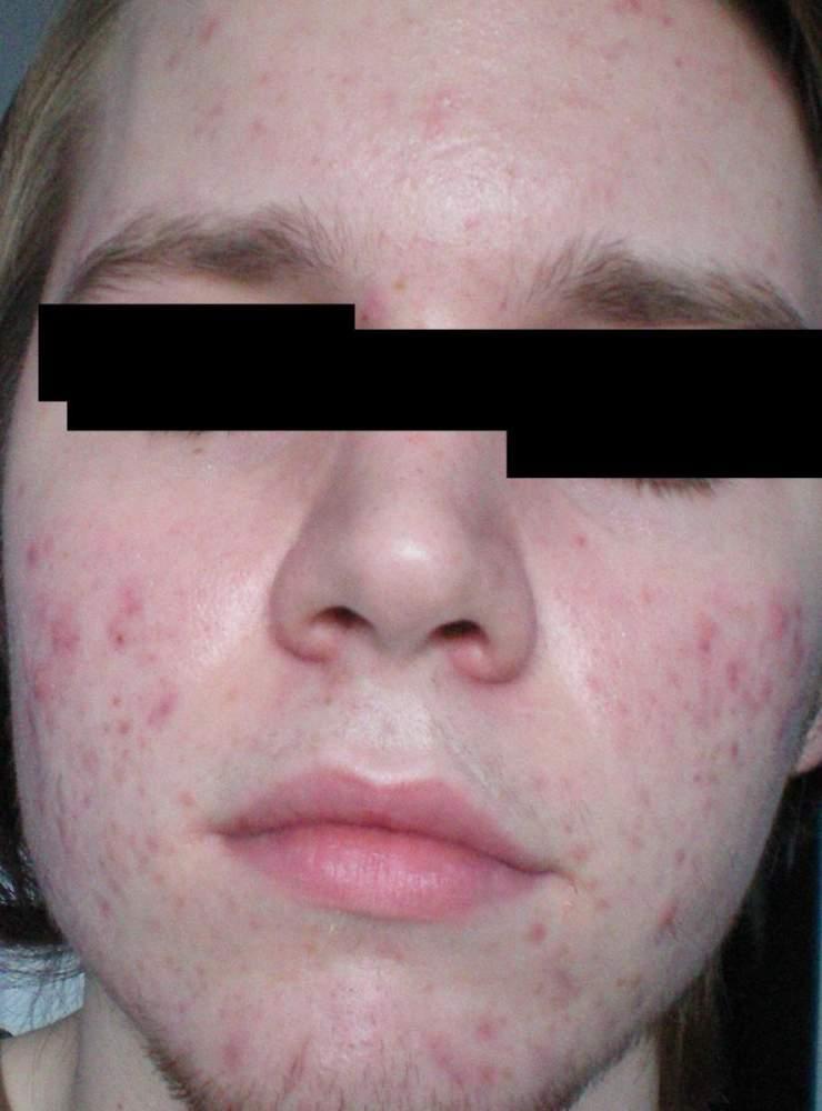 my gross face 2