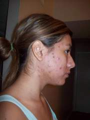 disgusting! day 6 of accutane
