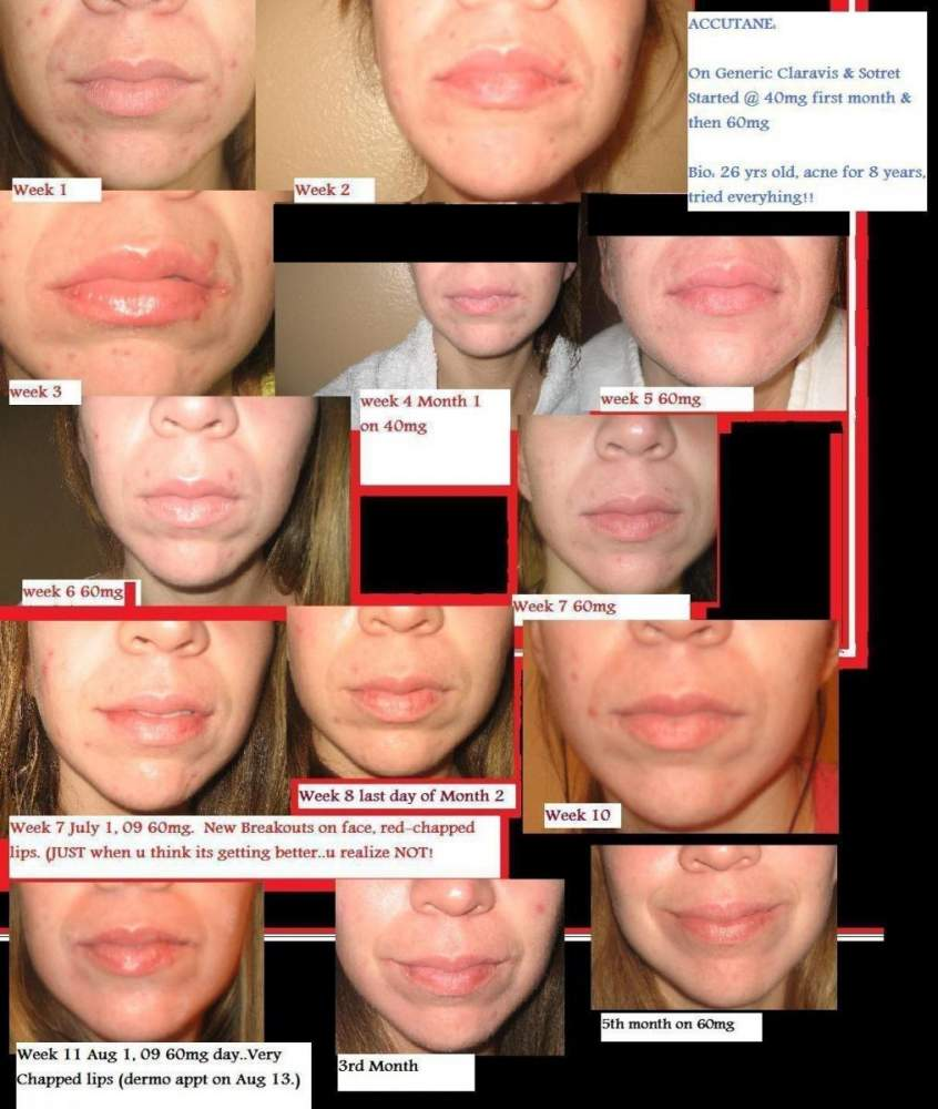 miracle acne treatment