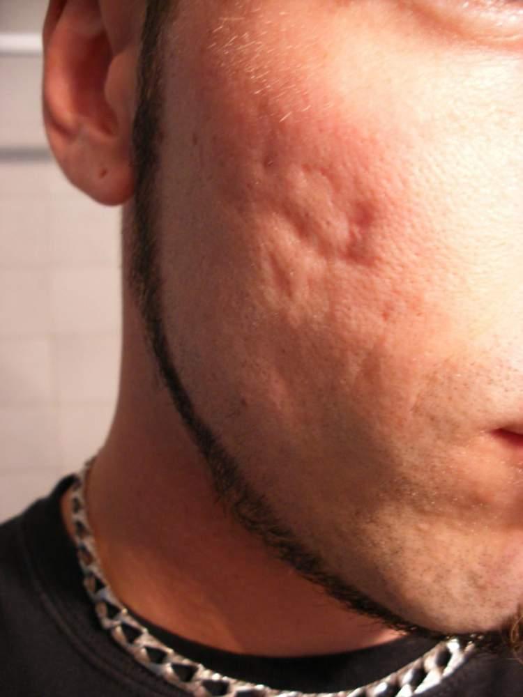 Scar excision