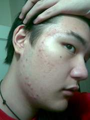 Right side of my face. Nodules at the jaw.