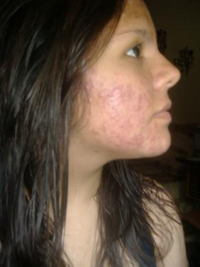 First Day I started Accutane.