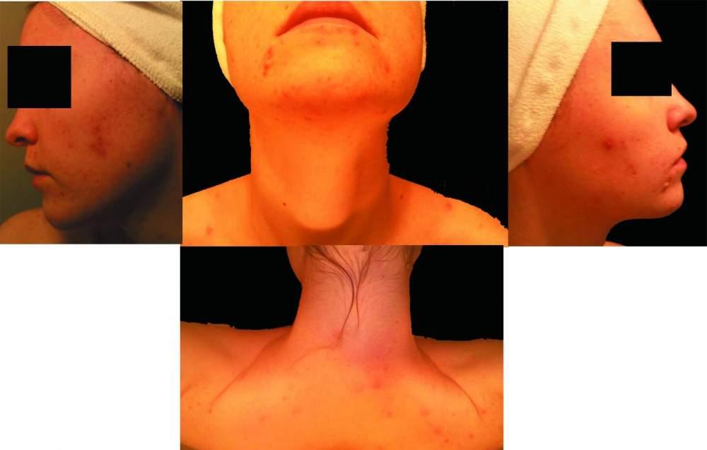 acne_day1 copy.jpg