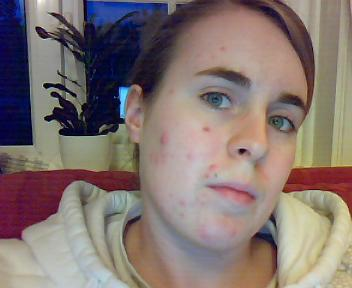 me and my acne