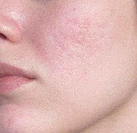 Scars On Cheeks