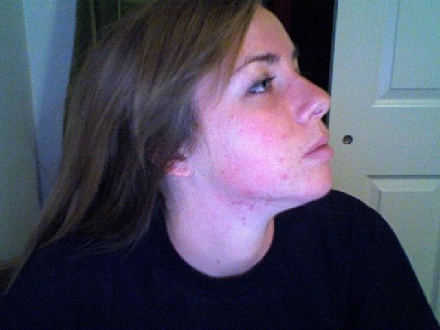 Profile left