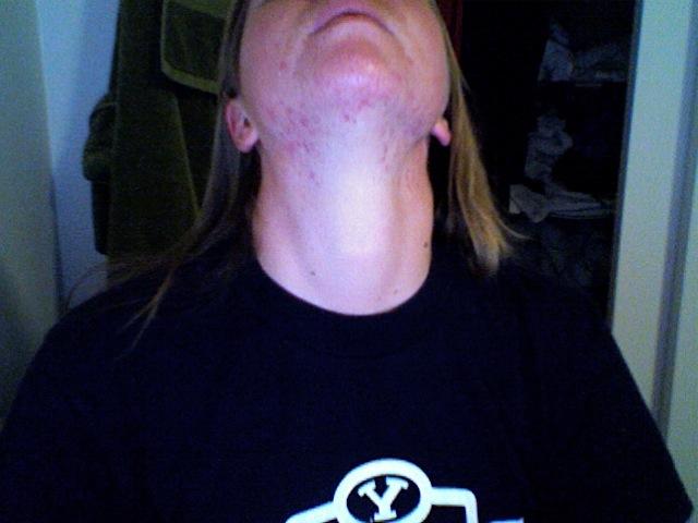 Neck/Throat