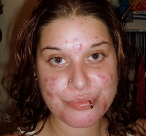 Nov 10th 2009 - 2 months on Clindagel 1% + Tetracycline