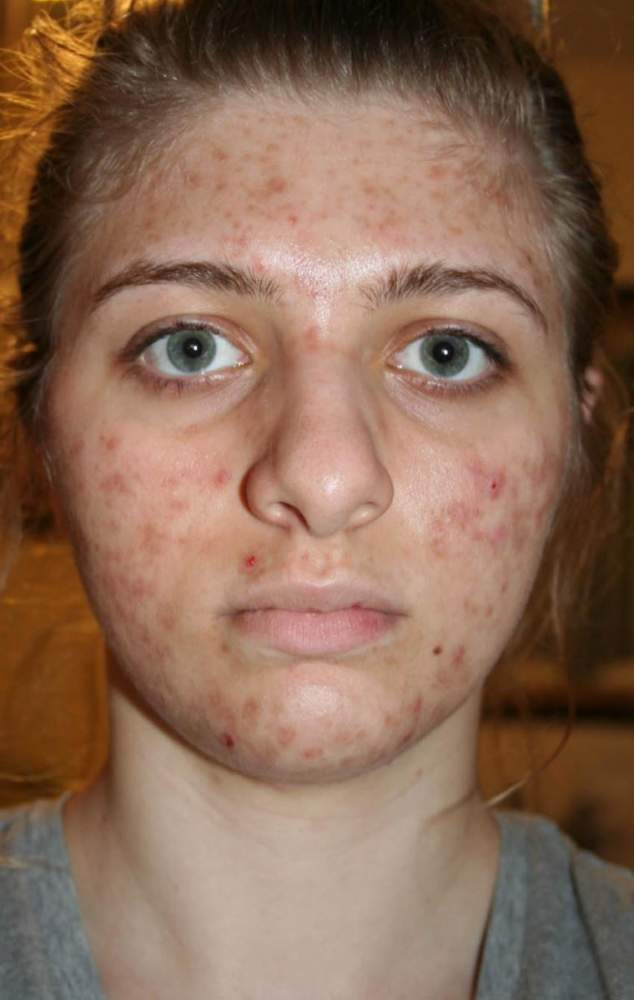 My Acne back in May 2009, 3 months after starting Tetracycli