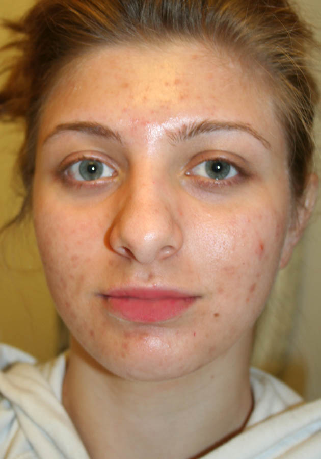 After smoothies front view WITH SCARS as I appear without ma