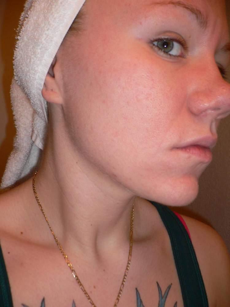 Sara Progress - Treatment Starts Dec 14