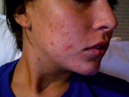 acne :(