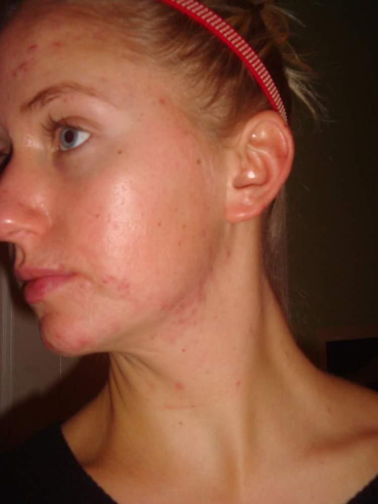 2 months into Claravis- no makeup