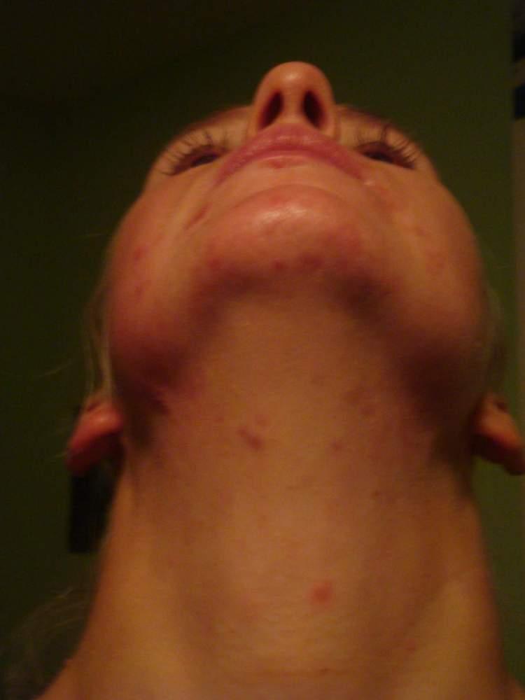 2 months of accutane - no makeup
