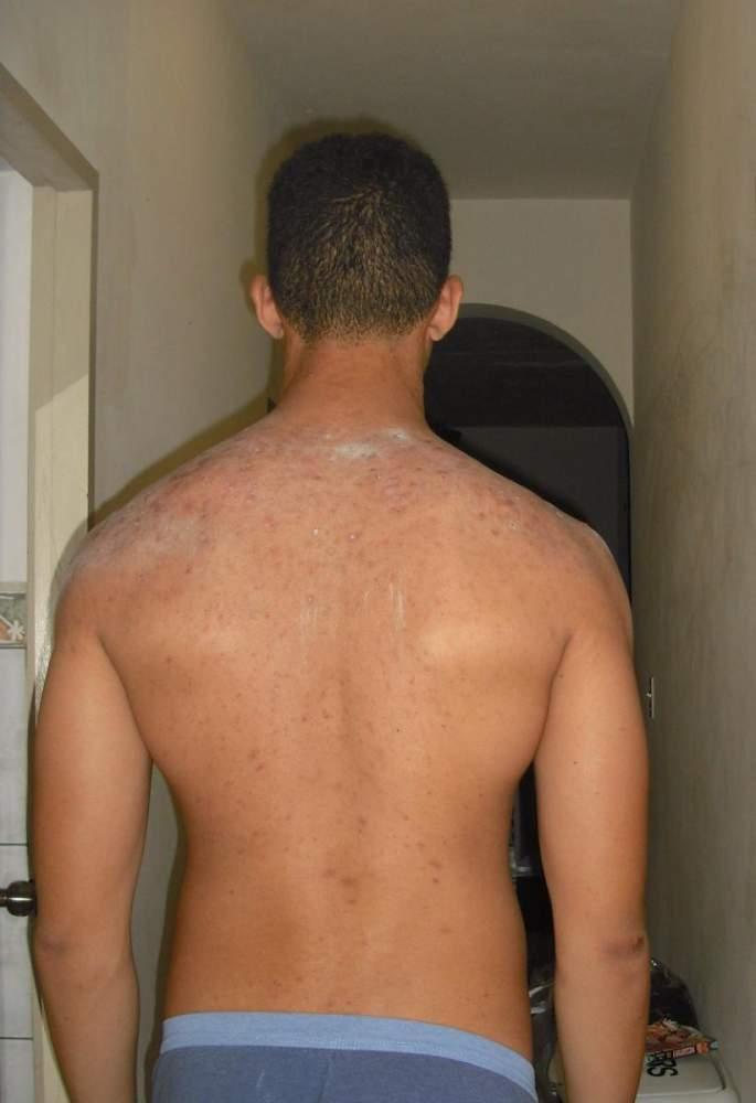 Bacne Scars NEED HELP