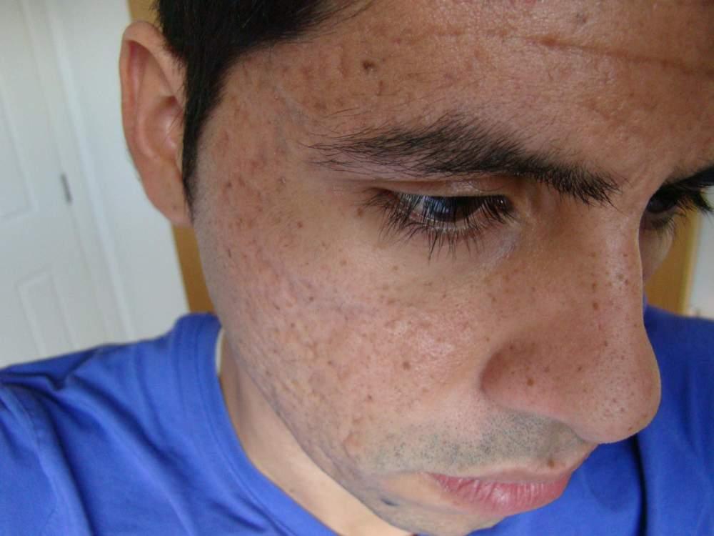 20/12/09  - Illustrating all freckles
