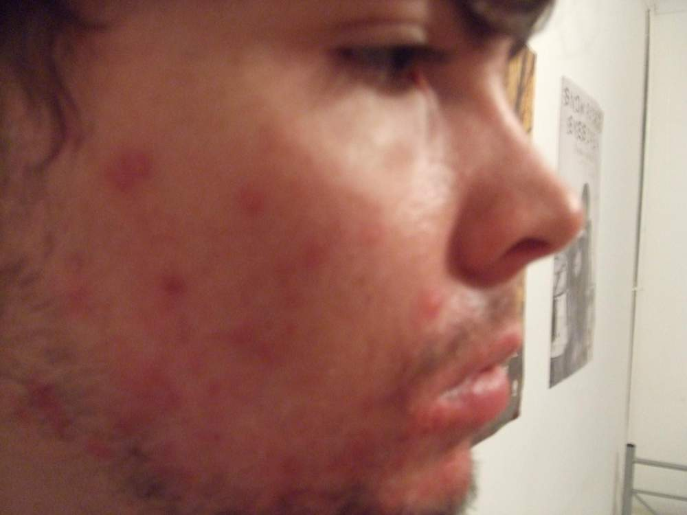 1 week of accutane right side