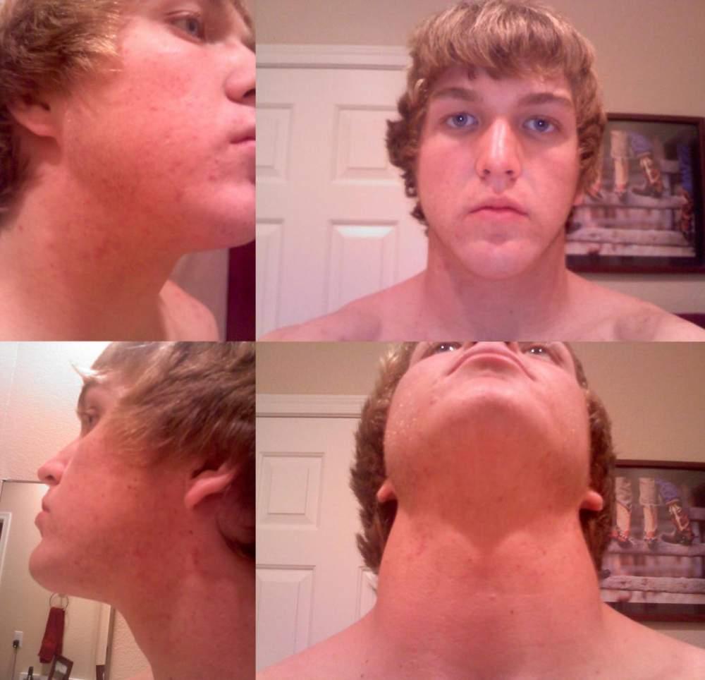 Acne Face/Body Progress