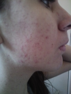 Results Of Acne