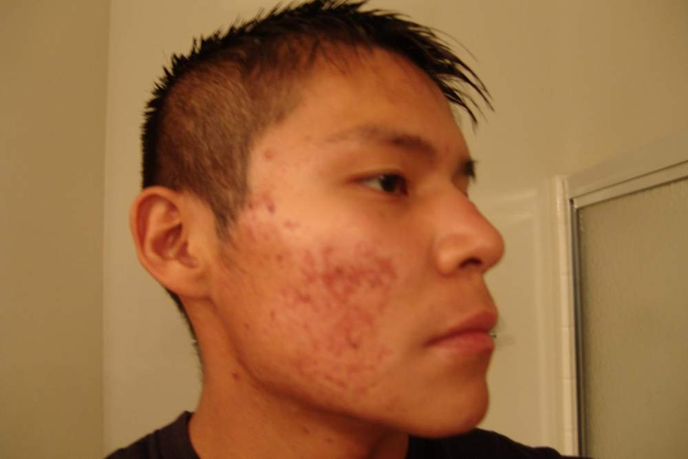 4. accutane right side finished month 1 18 Sep 08.JPG