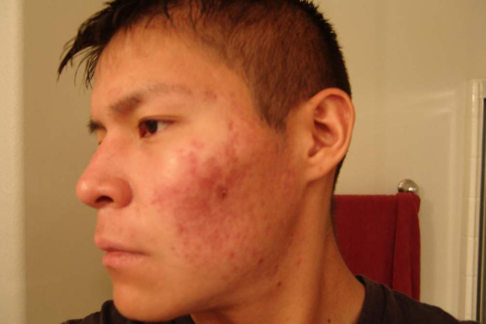 5. accutane left side forgot the month (2).JPG