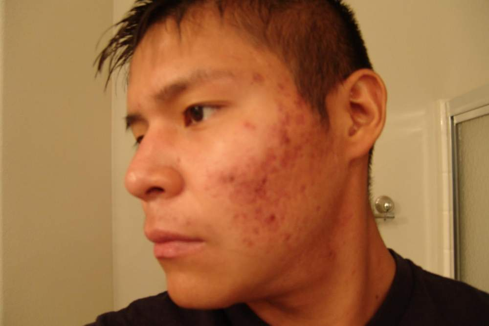 3. accutane left side finished month 1 18 Sep 08.JPG