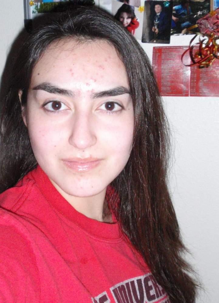 My Acne Journey