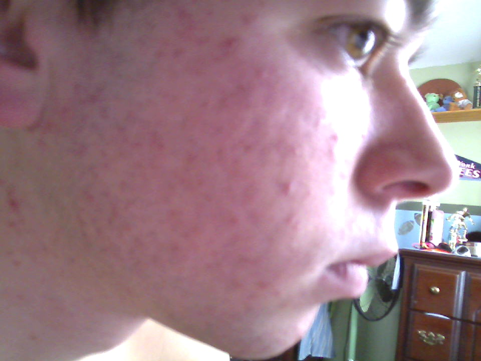 day 4 of accutane