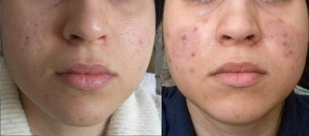 Dry-Needling Before and After