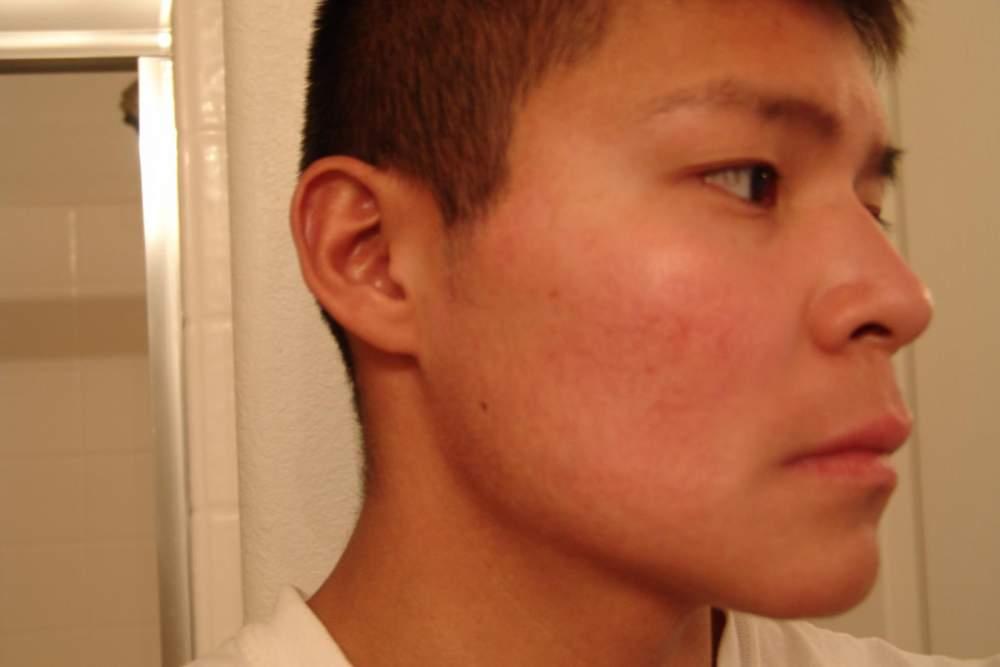 7. 21 February 2010 right side.JPG