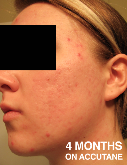 accutane joint damage