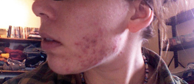 day one of accutane