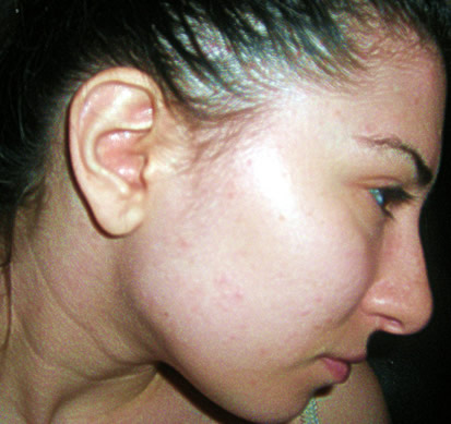 Right Side of Face