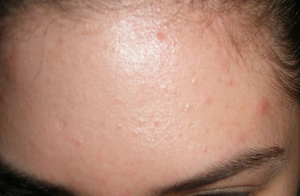 My Acne Pics