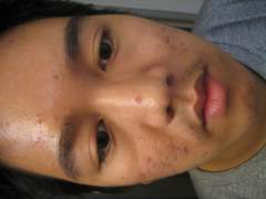 Day 1 - 3/6/2010 : Moderate Acne (Heavy on Side)