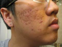 Day 1 - 3/6/2010 : Moderate Acne (Heavy on Side )