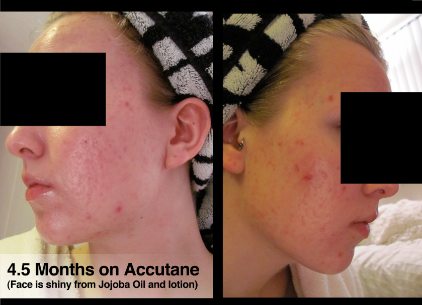 4.5 Months on Accutane